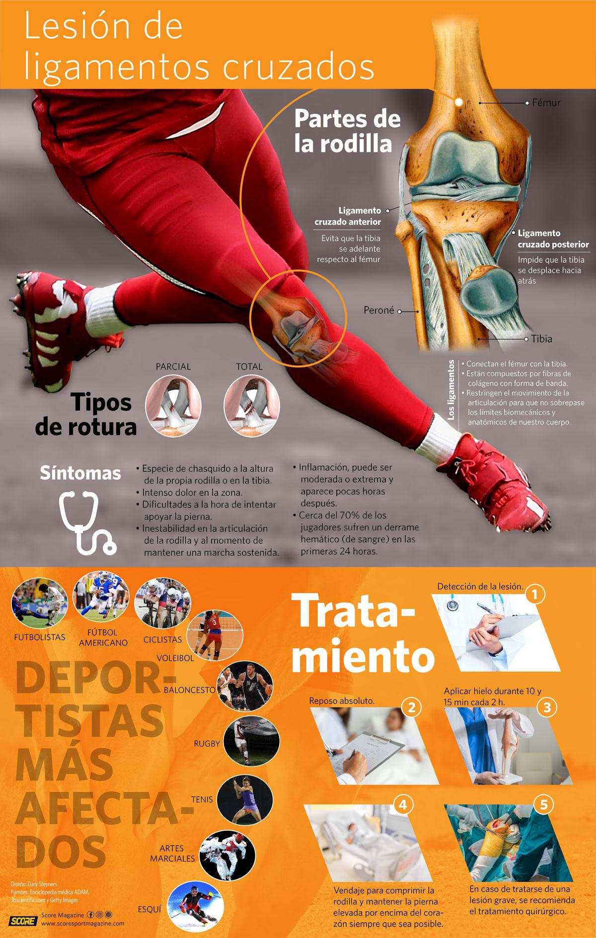 Infografía lesión de ligamentos cruzados